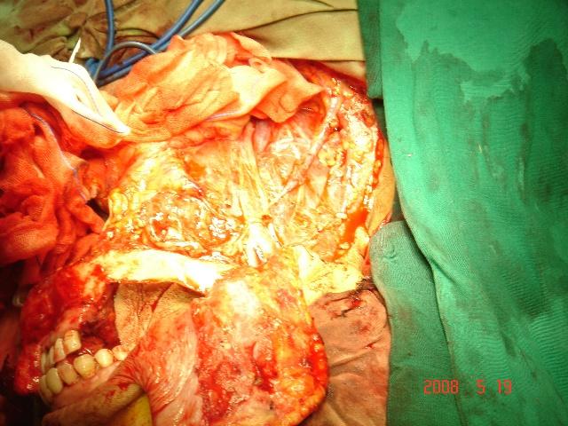 舌癌手术放疗后一年右肺部有阴影,咳嗽痰中无血,胸痛