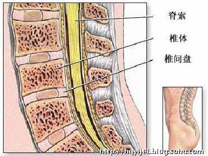 腰椎间盘突出症结构图